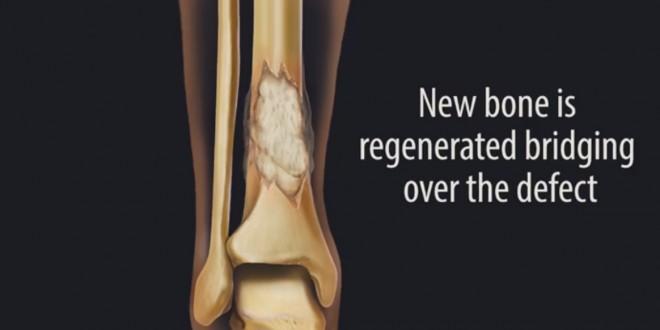 Breakthrough In Bone Repair