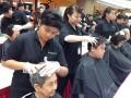 largest mass scalp treatment4